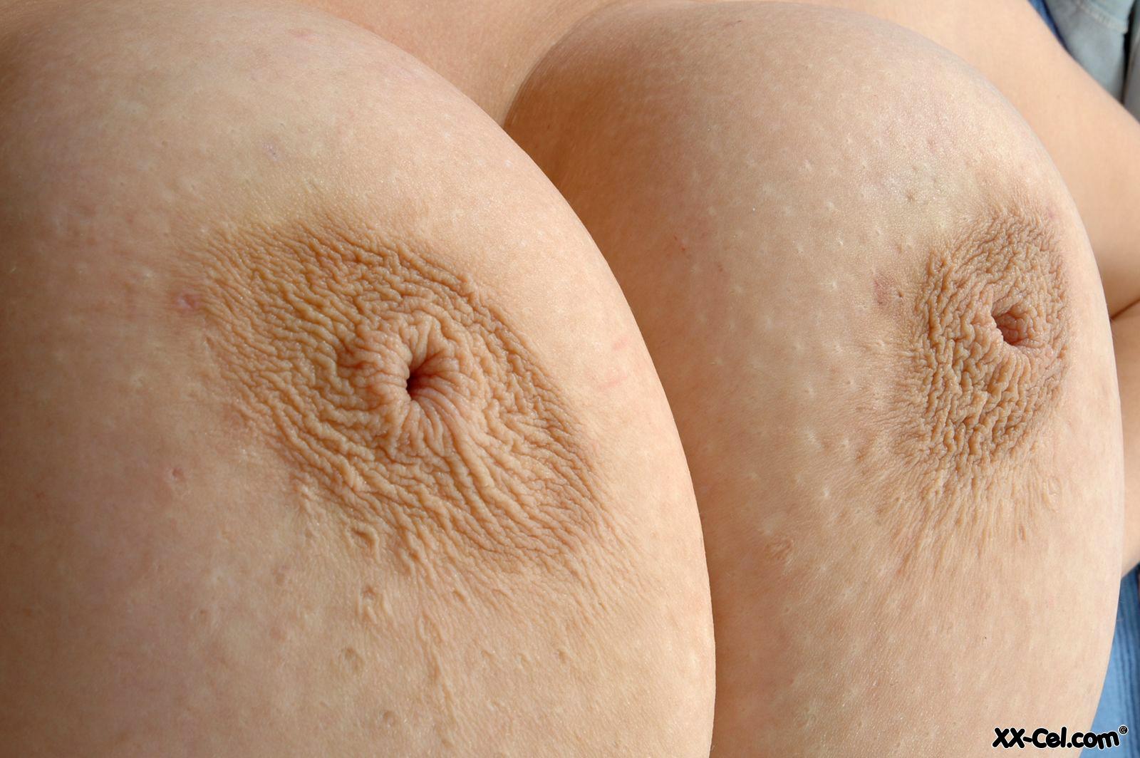 breast inverted nipples big